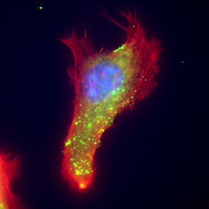 Epifluorescence image of extracellular vimentin with the protein actin and DNA.