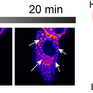 UBQLN2 forming stress-induced condensates in mammalian cells.
