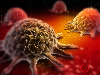 A digital illustration of cancer cells (Courtesy of Creations / Shutterstock Inc.)
